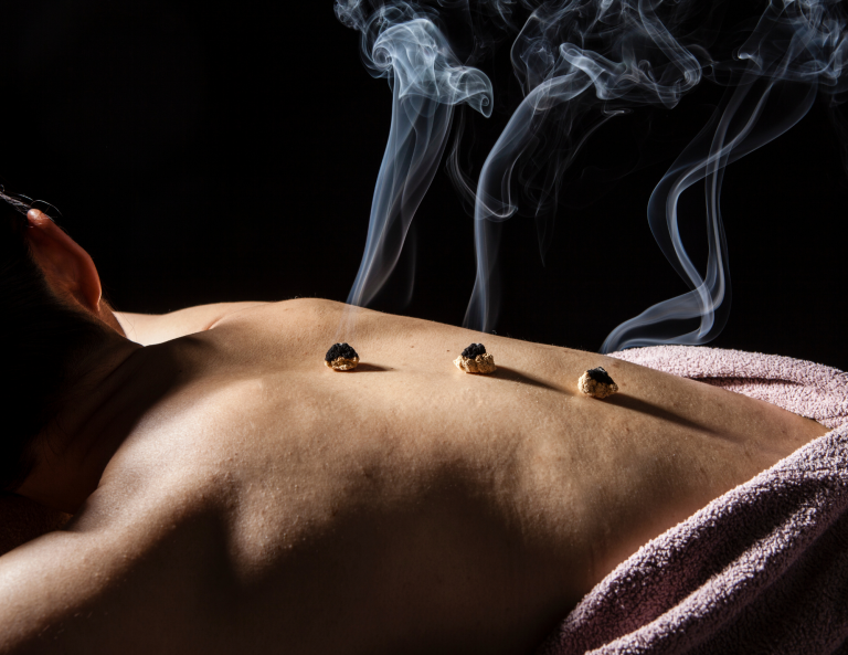 An image of moxibustion applied directly on a patient's back