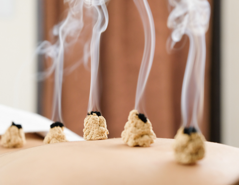 An image of moxibustion when applied directly.