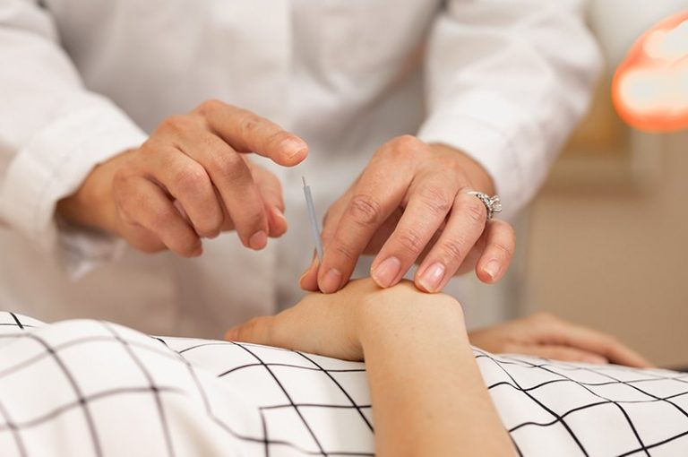 An image of needles being inserted during acupuncture treatment
